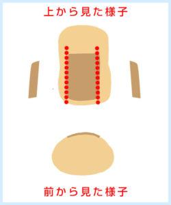 巻き爪ワイヤー施術