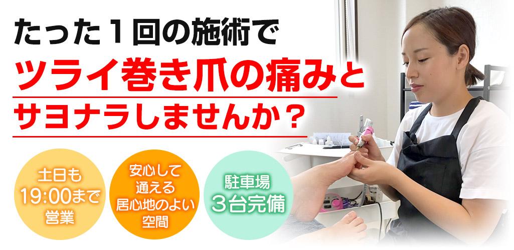 たった1回の施術でツライ巻き爪の痛みとサヨナラしませんか?